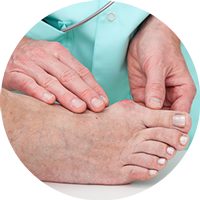 Surgery for Bunions